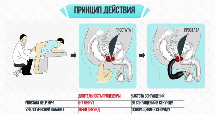 Prostata Help принцип действия
