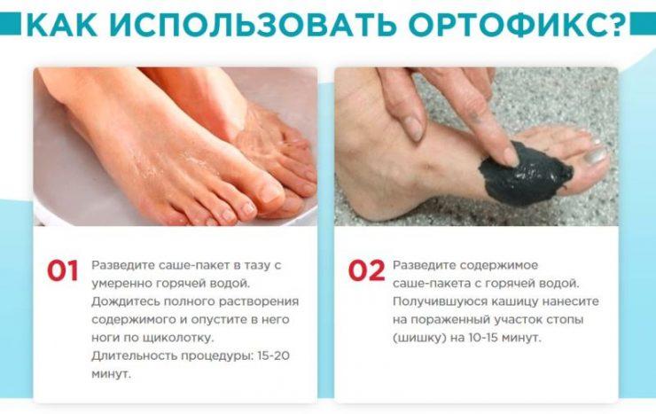 Применение Ортофикс