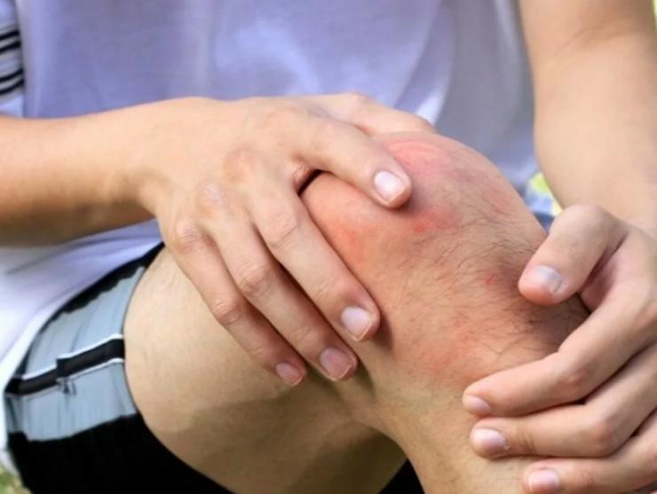 Эффективные средства для лечения артроза, артрита и других заболеваний суставов